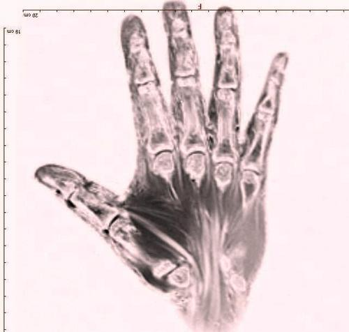 MRI072711.JPG