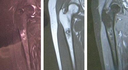 骨腫瘍MRI150604.jpg