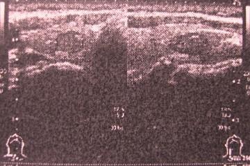 IMG_9185甲状腺線腫様腺腫.JPG